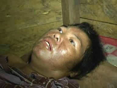 PASIEN TAK MAMPU MENGIDAP PENYAKIT LUPUS  DI RSUD AHMAD RIPIN DIPUNGUT BIAYA RP 400 RIBU